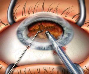 Если сделать операцию на глаза в частной клинике как вернуть деньги за операцию